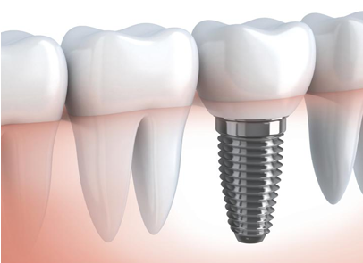 отбеливание зубов киев цена